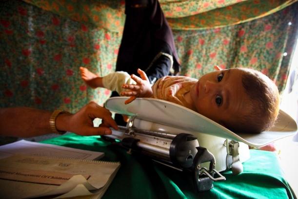 yemen-hunger-8.jpg